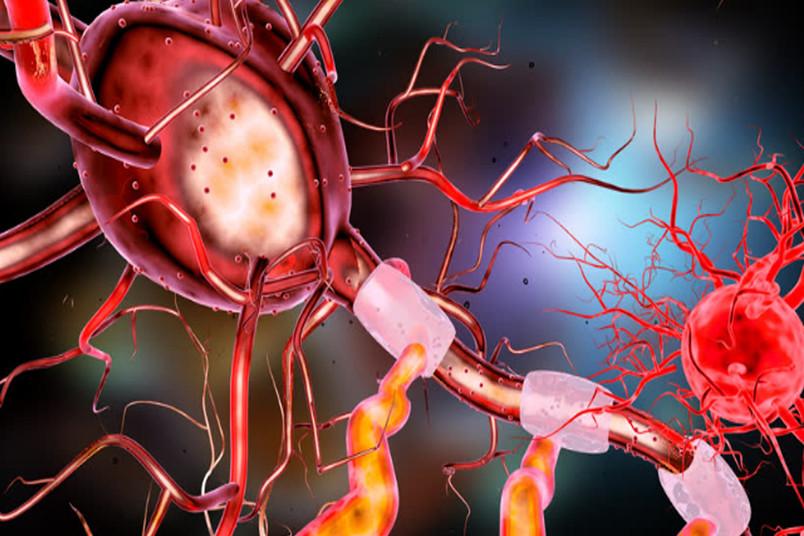 Nervenzellen im menschlichen Gehirn