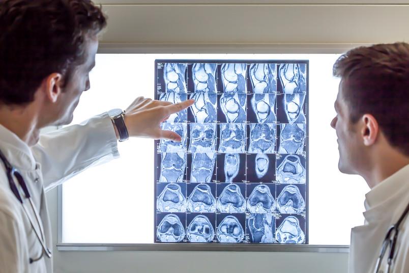 Zwei Ärzte schauen sich kernspintomografische Bilder an.
