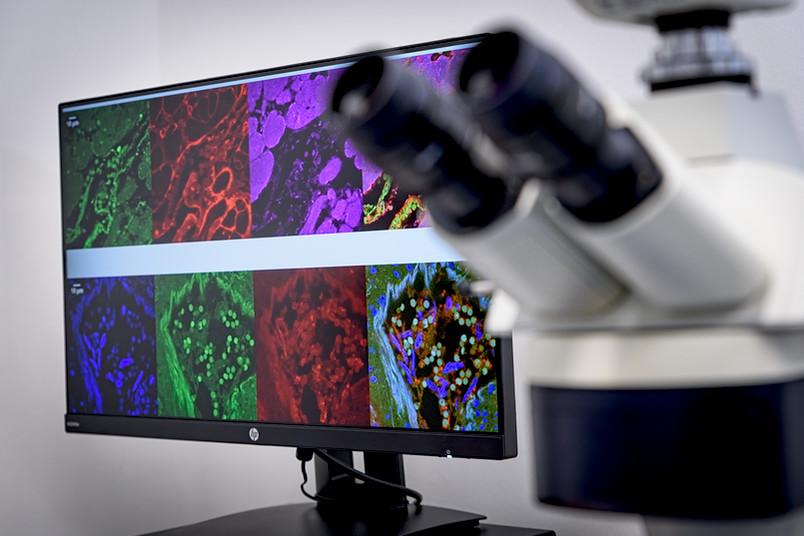 <div> Eine RUB-Medizinerin hat entdeckt, wie das Coronavirus in die Herzmuskelzellen eindringt.</div>